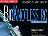 BioKnotless RC